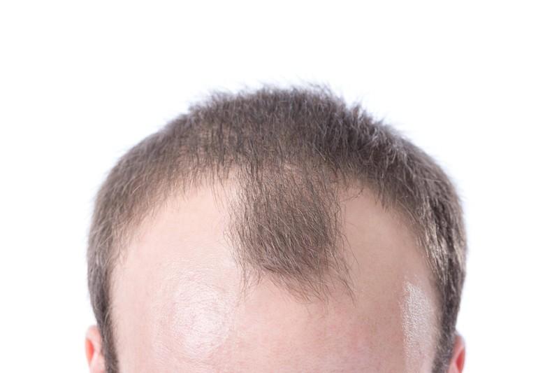 Frau hat Angst, dass Mann später eine Glatze bekommt