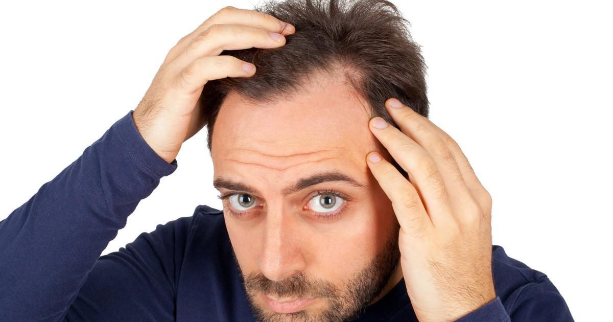 Haarausfall beim Mann: Tipps gegen eine Glatze