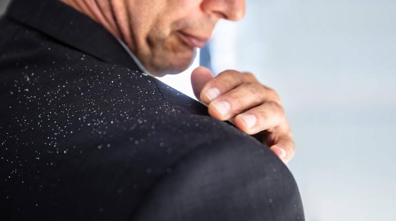 Ein Mann hat ein Problem mit Schuppen, die auf seiner Kleidung landen