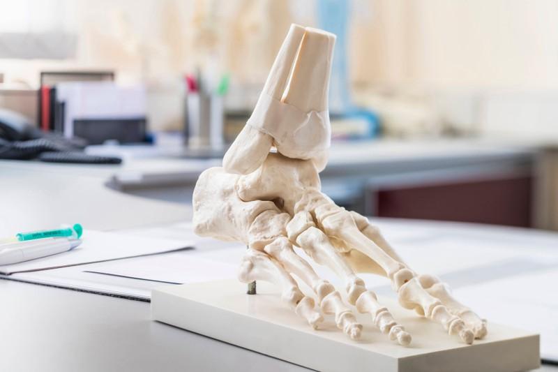 Die Knochen und ihre Masse sind sehr wichtig und können einen Indikator für Testosteronmangel geben.