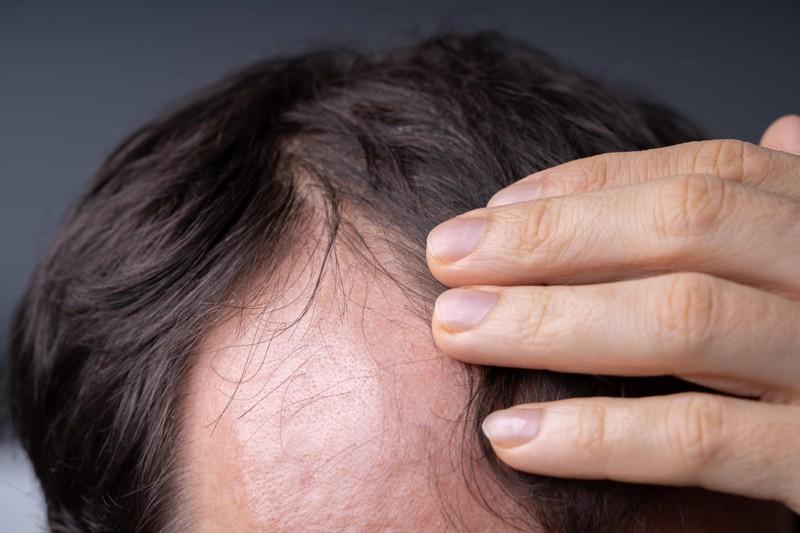 Haarausfall ist ein Zeichen von Eisenmangel